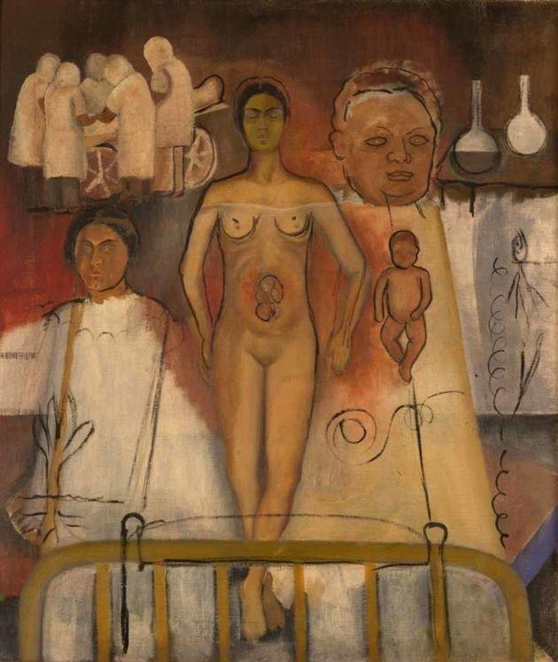 1931 FRIDA Y LA CESÁREA, 1931 (INCONCLUSO) - Óleo tela 73 x 62 cm